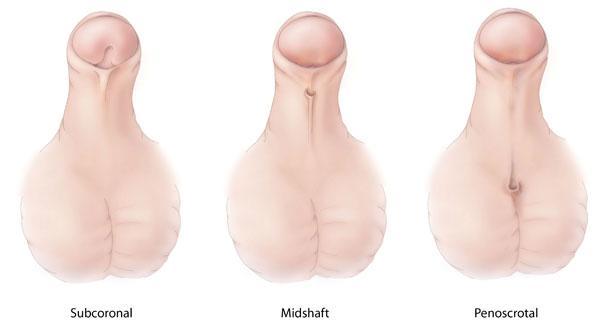 Είναι αποτελεσματική η χειρουργική διόρθωση του υποσπαδία;