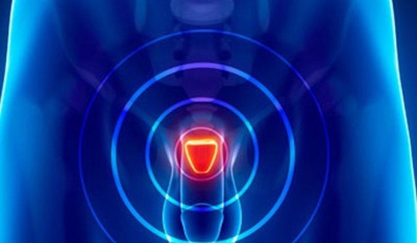 Νέα θεραπεία με λιγότερες παρενέργειες για την υπερπλασία του προστάτη