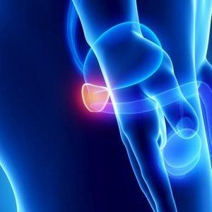 Εστιακή θεραπεία για τον καρκίνο του προστάτη